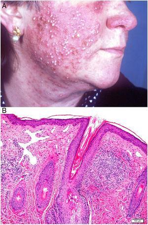 Rosácea. A) Pápulas, pústulas y nódulos quísticos en la cara. B) Rosácea. Granuloma parafolicular con telangiectasias dérmicas superficiales (H&E ×100).