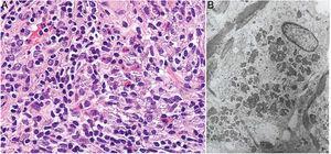 Granuloma por aluminio. A) Histiocitos con citoplasma amplio, violáceo, granuloso (H&E ×400). B) En la microsopía electrónica se demuestra que el granulado citoplásmico corresponde a los depósitos de aluminio.