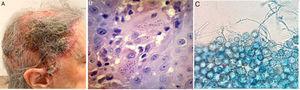 A. Imagen clínica. Se evidencia placa eritematocostrosa que ocupa la totalidad del cuero cabelludo, con costra amarillenta, por sectores melicérica, exudado seropurulento y áreas de alopecia cicatrizal. B. Biopsia cutánea de lesiones. Hematoxilina-eosina. En dermis profunda se evidencian elementos levaduriformes intracelulares, rodeados de un halo periférico. C. Examen directo de colonias de H. capsulatum aisladas en agar Sabouraud. Se visualizan macroconidios verrucosos característicos.
