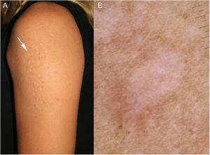A) Máculas en el brazo de la paciente. B) Imagen dermatoscópica.