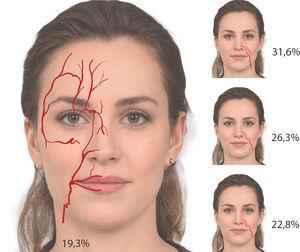 Arterias faciales.