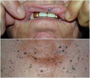 Imagen clínica de malformaciones venosas en mucosa oral, piel perioral y área preesternal.