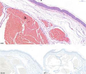 Imagen histológica de hematoxilina-eosina donde se aprecian luces vasculares de pared fina. Tinciones D2-40 y WT-1 negativas.