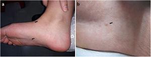 Imágenes clínicas. a. Dos lesiones (←) en el dorso y la planta del pie derecho b. Pápula eritematosa cupuliforme de centro umbilicado (←) en la planta del pie derecho.