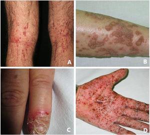 Apariencia clínica típica de AiKD: A) Queratosis liquenoide crónica; B) Poroqueratosis; C) Acrodermatitis continua de Hallopeau; D) Psoriasis pustulosa.