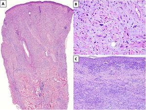 A) Melanoma desmoplásico (MD) infiltrando en profundidad, alcanzando la dermis reticular profunda (HEx20). B) MD con melanocitos fusiformes con algunos núcleos grandes e hipercromáticos, dispuestos de forma aislada y desorganizada en un estroma ligeramente fibromixoide (HEx200). C) MD asociado a un melanoma in situ (HEx200).