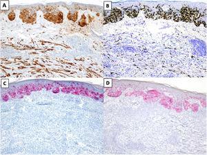 MD asociado a un melanoma in situ de extensión superficial. A) y B). Tinciones inmunohistoquímicas de S100 (x100) y SOX10 (x100): en ambas tinciones se observa positividad en las células del MD y del melanoma in situ. C) y D) Tinciones inmunohistoquímicas de melanA (x100) y HMB-45 (x100): en ambas tinciones se identifica expresión en el melanoma in situ y ausencia de expresión en el MD.