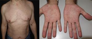 Síndrome antirretroviral agudo con exantema macular eritematoso morbiliforme en tronco a) y afectación palmar b).