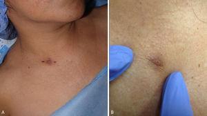 Lesión nodular supraclavicular derecha.