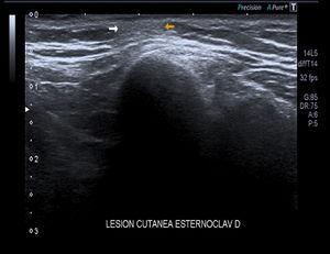 Estudio ecográfico con lesión subcutánea hipoecoica bien definida, no encapsulada.
