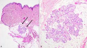 En tejido celular subcutáneo, agregados de tejido salival constituidos por glándulas de tipo mucoso y seroso.