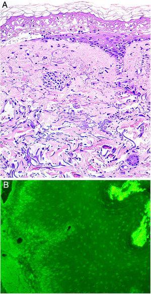 A. Histología reveladora de necrosis epidérmica, estrato córneo normal e infiltrado linfocítico perivascular y perianexal leve (H-E, x200). B. Inmunofluorescencia indirecta. La inmunofluorescencia de la sangre del paciente, realizada en esófago de mono demuestra la presencia de autoanticuerpos IgG en circulación ligados a los núcleos de queratinocitos epiteliales (dilución 1:20, amplificación original x200).