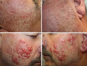 A y B) Pápulas eritematosas sobre una piel congestiva. C y D) Nódulos eritematosos, de consistencia firmes, con tendencia a confluir en las mejillas y los pabellones auriculares.