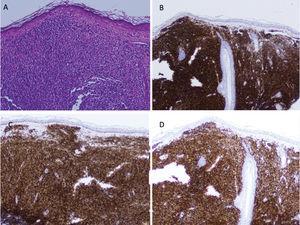 A) Biopsia de una lesión nodular. Infiltrado linfocitario dérmico compuesto por linfocitos de pequeño tamaño con núcleos hipercromáticos y redondeados, y con un citoplasma escaso (hematoxilina-eosina×20). B-D) Positividad para CD20 (B), BCL-2 (C) y PAX-5 (D) del infiltrado linfocitario.