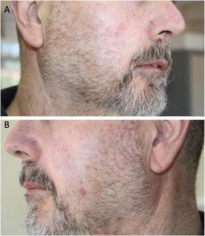 A y B) Remisión clínica completa 2años tras el tratamiento.