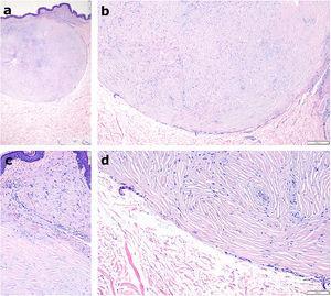 Imágenes histopatológicas. a) Lesión nodular dérmica, circunscrita y no encapsulada (hematoxilina-eosina, × 20). b) Haces de colágeno hialinizado, paucicelular, separados por hendiduras y adoptando un patrón estoriforme. (hematoxilina-eosina, × 40). c y d) A mayor detalle, «collarete» de estructuras vasculares de pequeño tamaño colapsadas, con formación de microtrombos y extravasación eritrocitaria (hematoxilina-eosina, × 200).