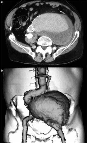Angiotomografía abdominopélvica: a) Pseudoaneurisma ilíaco; b) Reconstrucción 3D.