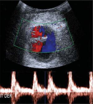 Eco-Doppler en el que se observa una imagen quística compleja en el hueco poplíteo de 4,5 × 5cm, con flujo arterial turbulento y curva de baja resistencia, compatible con pseudoaneurisma.