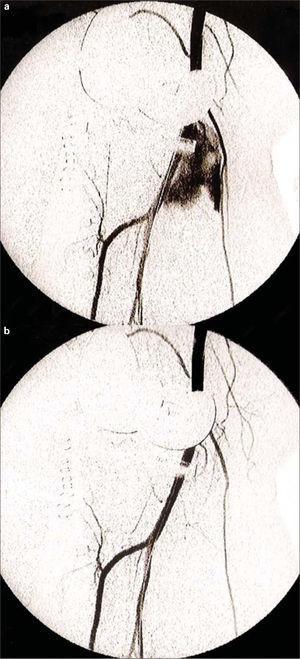 a) Falso aneurisma procedente de la cara anterior de la arteria poplítea en el sector de la línea interarticular; b) Arteriografía de control tras colocación del stent recubierto.
