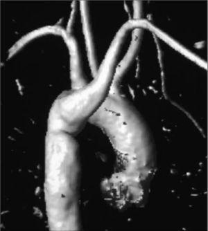 Angiorresonancia que muestra un arco aórtico izquierdo con origen aberrante de la arteria subclavia derecha, después de la arteria subclavia izquierda.