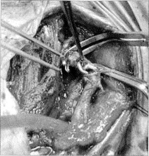 Venotomía yugular externa, donde se objetiva que el cateter de Swan-Ganz (amarillo) atrapa el electrodo del marcapasos.