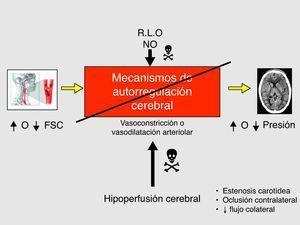Alteración de los mecanismos de autorregulación cerebral en el SHC (mecanismo fisiopatológico). FSC: flujo sanguíneo cerebral; NO: óxido nítrico; R.L.O: radicales libres de oxígeno.
