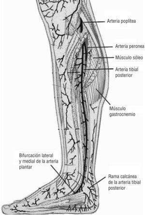 Arteria tibial posterior. Emite perforantes que surgen entre la musculatura flexora y el músculo sóleo. Imagen cedida por Attinger CE et al6.