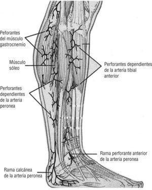 Arteria peronea. Se desplaza sobre la cara medial del peroné y nutre la región posterolateral e inferior de la pierna, el tobillo y el talón. Imagen cedida por Attinger CE et al6.