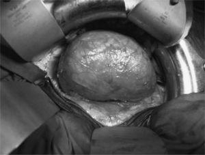 Imagen intraoperatoria del aneurisma de aorta abdominal.