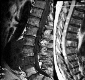 Resonancia magnética nuclear: hidatidosis vertebral lumbar complicada con diseminación aórtica, al espacio prevertebral y canal espinal.