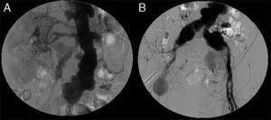 Arteriografía. Múltiples dilataciones aneurismáticas a lo largo de la aorta abdominal y la arteria mesentérica superior. Arteria renal izquierda ocluida. Aneurismas de arterias ilíacas comunes, arteria hipogástrica izquierda y arteria femoral común derecha.