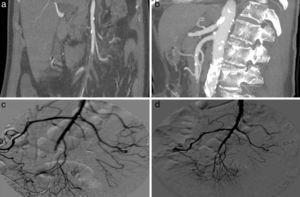 Angio-TC: oclusión en rama yeyuno ileal de arteria mesentérica superior (a y b). Arteriografía diagnóstica (c) y control postratamiento (d).