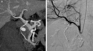 a) Reconstrucción de angio-TC: seudoaneurisma en arteria gastroduodenal. b) Angiografía de control postembolización sin observarse fugas.