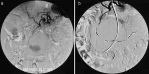 a) Arteriografía diagnóstica: 2 seudoaneurismas en arteria gastroepiploica derecha. B) Arteriografía de control postembolización observándose la exclusión de ambos aneurismas.