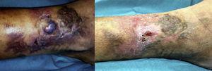 A la izquierda se observa la tumoración violácea y los cambios tróficos antes del tratamiento endovascular. La fotografía de la derecha muestra el aspecto de las lesiones cutáneas un mes después de la embolización de la MAV.