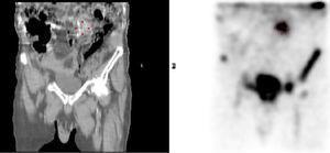 Gammagrafía con leucocitos marcados preoperatoria, que muestra infección de la prótesis vascular a nivel L2-L3.