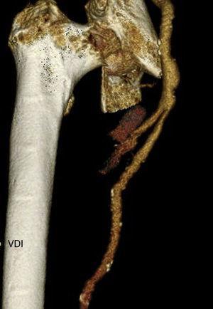 Reconstrucción volumétrica de la zona de rotura del aneurisma de la arteria femoral profunda.