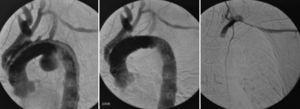 Caso 2. Arteriografía intraoperatoria: A) Permeabilidad de los injertos realizados en un primer tiempo quirúrgico y visualización de aneurisma sacular. B) Control tras la implantación de endoprótesis C-TAG (Gore®). C) Amplatzer en origen de subclavia izquierda, ausencia de relleno del cayado desde inyección humeral izquierda.