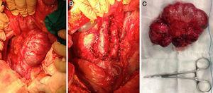 Imágenes intraoperatorias. A y B) Previa y posterior a la resección. C) Pieza operatoria.