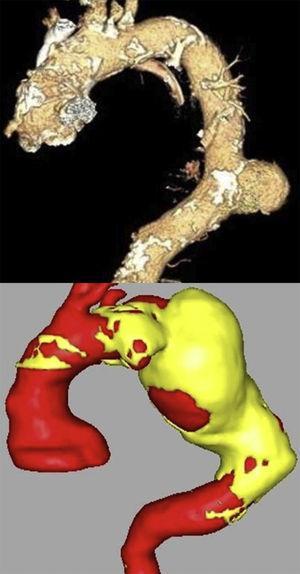 Aneurisma torácico sacular (parte superior) y fusiforme (parte inferior).