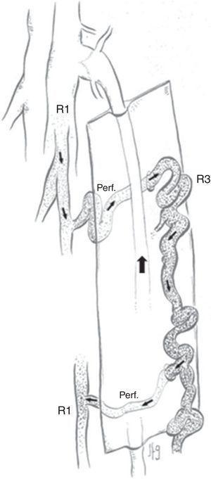 Shunt veno-venoso tipo 6.
