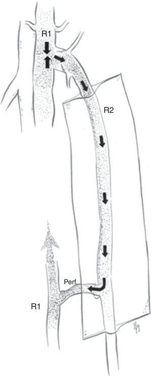 Shunt veno-venoso tipo 1.