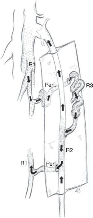 Shunt veno-venoso tipo 4 con punto de fuga en perforante.
