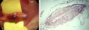Arteria carótida trombosada tras 15 días, imagen macroscópica (izquierda), y corte histológico a 400x (derecha) (hematoxilina eosina).