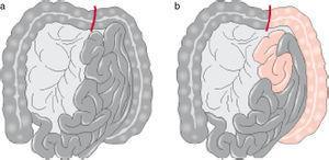 Isquemia aguda con necrosis intestinal. a) Intestino totalmente afectado, indica trombosis arterial. b) Isquemia intestinal con yeyuno y colon izquierdo viable, indica embolia de la arteria mesentérica superior1.
