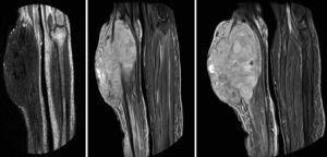 RMN de ambas piernas, donde se visualizó tumoración en cara anterolateral de la pierna derecha con afectación cutánea, del tejido celular subcutáneo y de los 3 compartimentos musculares de la pierna en profundidad.