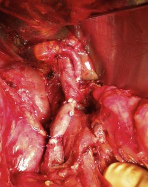 Imagen intraoperatoria del bypass portomesentérico con vena femoral superficial.