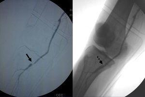 Estenosis de bypass venoso poplíteo-poplíteo a nivel de la anastomosis distal. Tratamiento mediante angioplastia con balón liberador de fármaco IN.PACT Admiral® de 4mm de diámetro.
