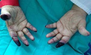 Lesiones isquémicas digitales tras 17 días de tratamiento en extremidades superiores: necrosis irreversible de falanges distales del segundo dedo bilateral, lesiones puntiformes en resto de dedos asociado a cianosis acra.