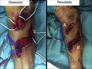 Reparación quirúrgica. 1). Anastomosis humero-basilica. 2). Colateral venosa. 3). Arteria radial. A). ligadura de anastomosis braquio-basilica. B). Anastomosis con arteria radial.